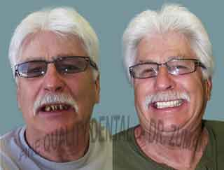 Full mouth rehabilitation with porcelain crowns